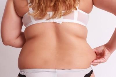 痩身エステで脂肪吸引後のエンダモロジーは必要か否か