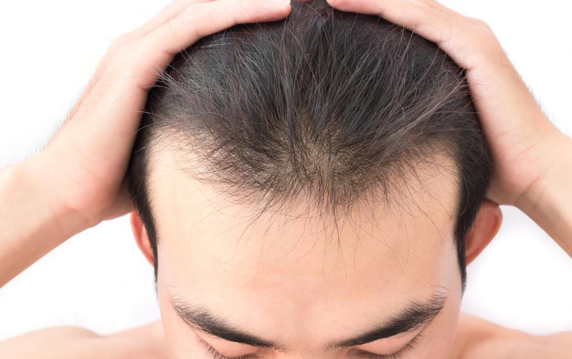 化粧品メーカーの美容成分のアデノシンを含む育毛剤