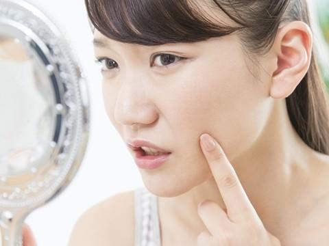 顎にできる大人ニキビの原因と対策